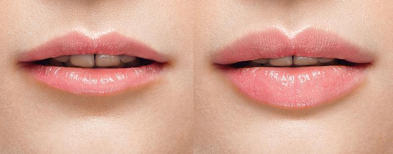 Увеличение губ с помощью филлеров
